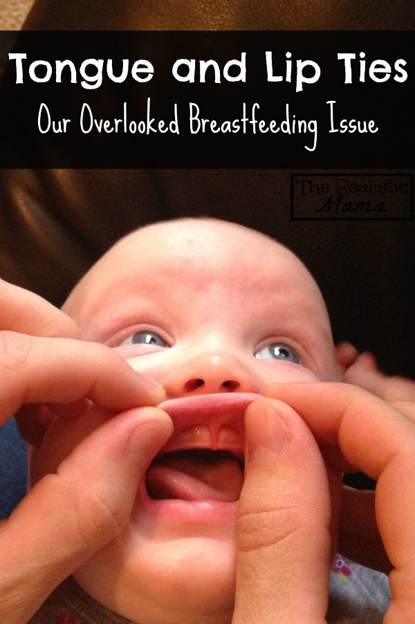 Tongue and Lip Ties can be Overlooked Breastfeeding Issues