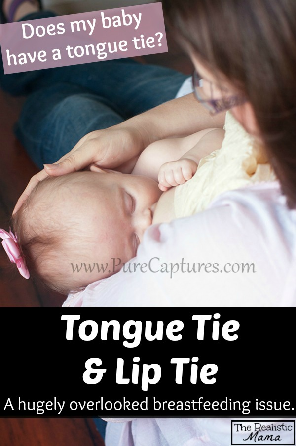 Tongued Tied Baby. Tongue tie is a hugely overlooked breastfeeding issue, the article includes warning signs to look for.