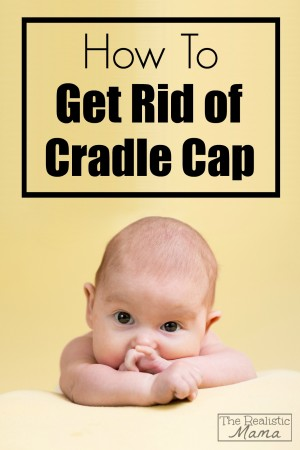 How to get rid of cradle cap, the easy way!